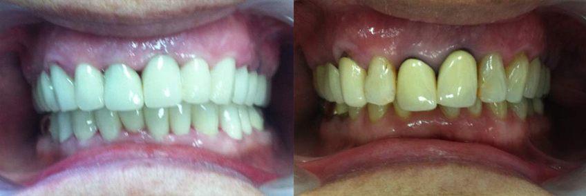 טיפול שיניים – כתרי זרקוניה