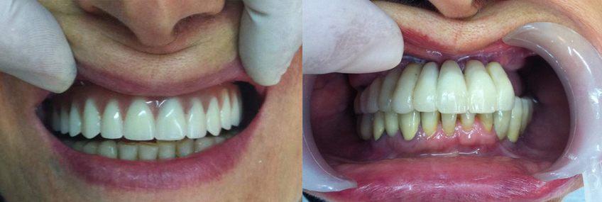 טיפול שיניים – השתלות שיניים ביום אחד בלבד