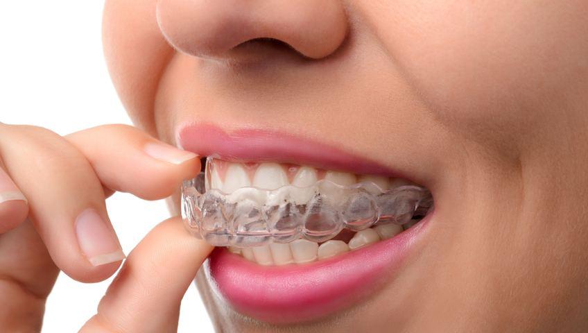 יישור שיניים – אורתודנטיה