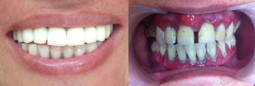 dental-implants-in-day-02