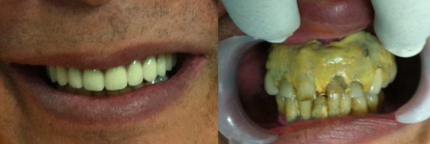 dental-implants-in-day-03