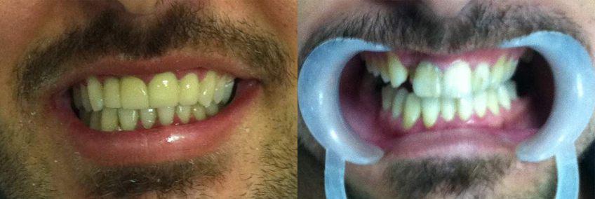 dental-implants-01